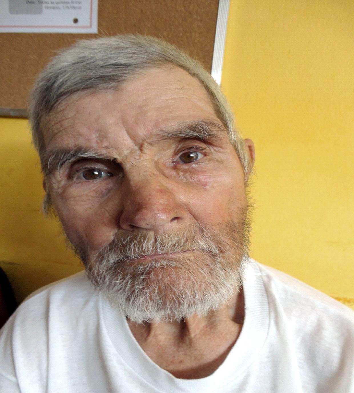 O idoso diz ter 80 anos e apresenta quadro crônico de confusão