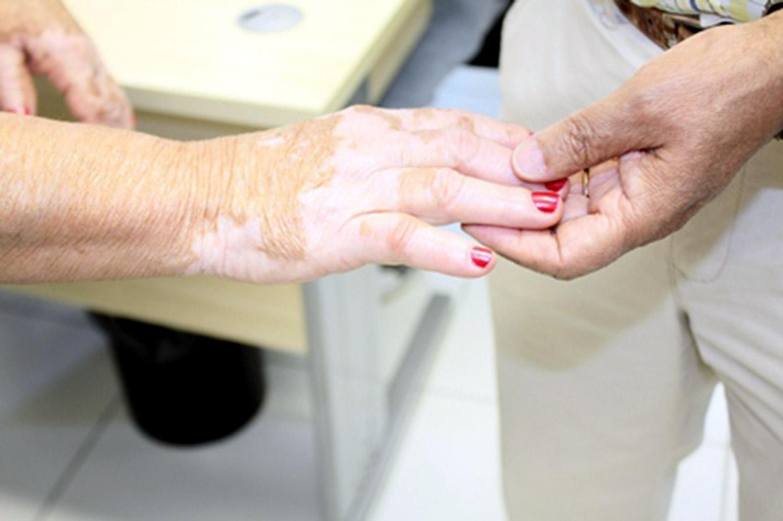 Doença é caracterizada por manchas brancas na pele