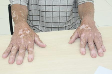 Pessoa com as mãos com vitiligo em cima de mesa